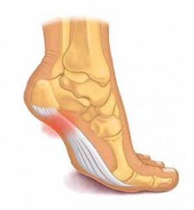 prevenir lesiones en running fascitis plantar