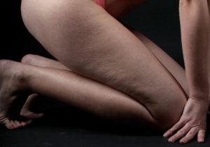 celulitis en las piernas imagen