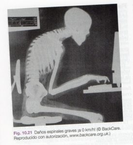 movimiento fascial postura